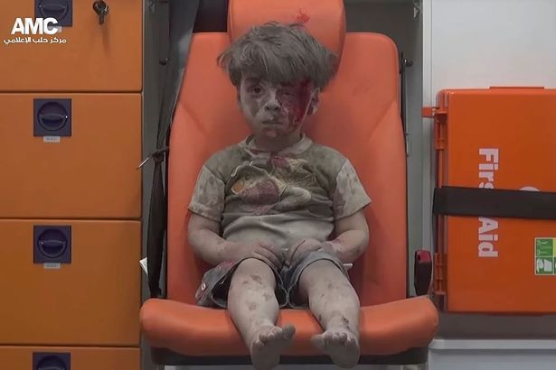 Syrian-child-pulled-from-Aleppo-rubble