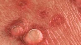 things-you-dont-but-should-really-know-about-genital-warts